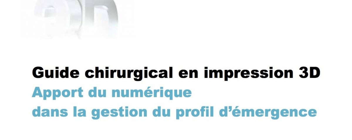 Article Guide chirurgical et impression 3D Bordeaux