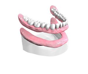 Fixer un dentier