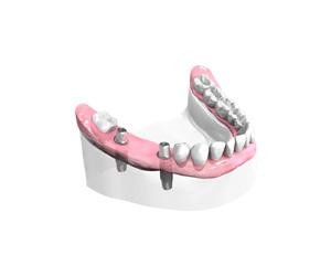 Implants dentaires Bordeaux
