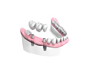 implants Dentaires - Bordeaux