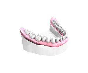Bridge dentaire sur implants - Bordeaux