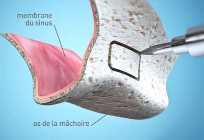 Sinus-Lift 2 Dentiste Bordeaux