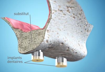 Sinus-Lift-4-Dentiste Bordeaux