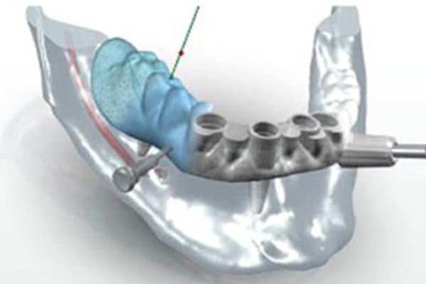 chirurgie-guidee-par-ordinateur - Dentiste Bordeaux