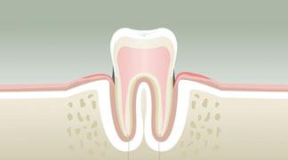 parodontologie BORDEAUX 2
