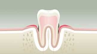 parodontologie BORDEAUX 3