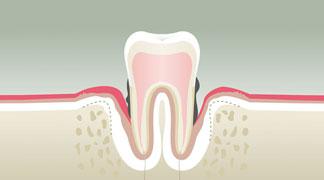 parodontologie BORDEAUX 4