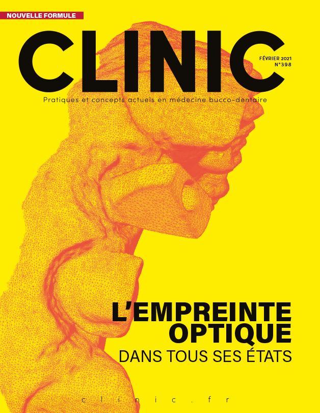 Empreinte-optique-Clinic-Odontia